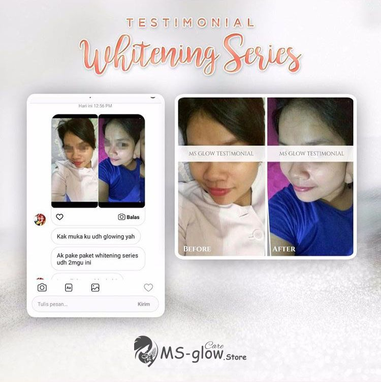 Review Whitening Series